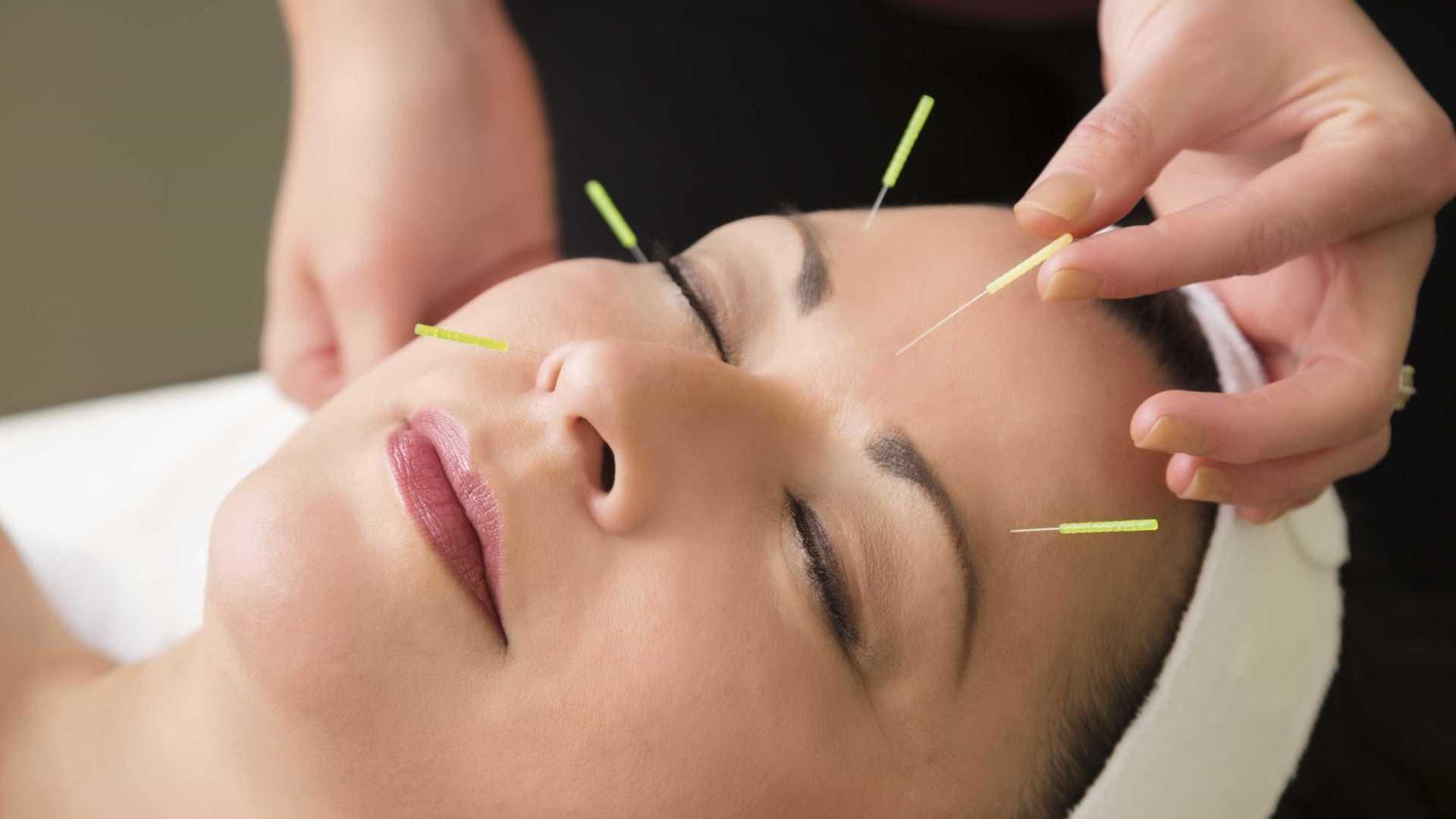 qualidade-de-vida-acupuntura-capa